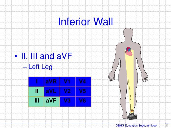 II, III and aVF