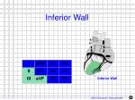 inferior wall1