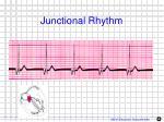 junctional rhythm1
