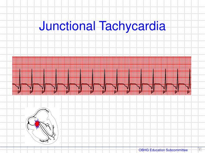Junctional Tachycardia