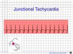junctional tachycardia1
