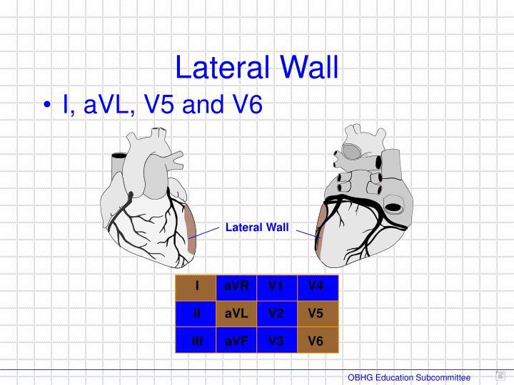 I, aVL, V5 and V6