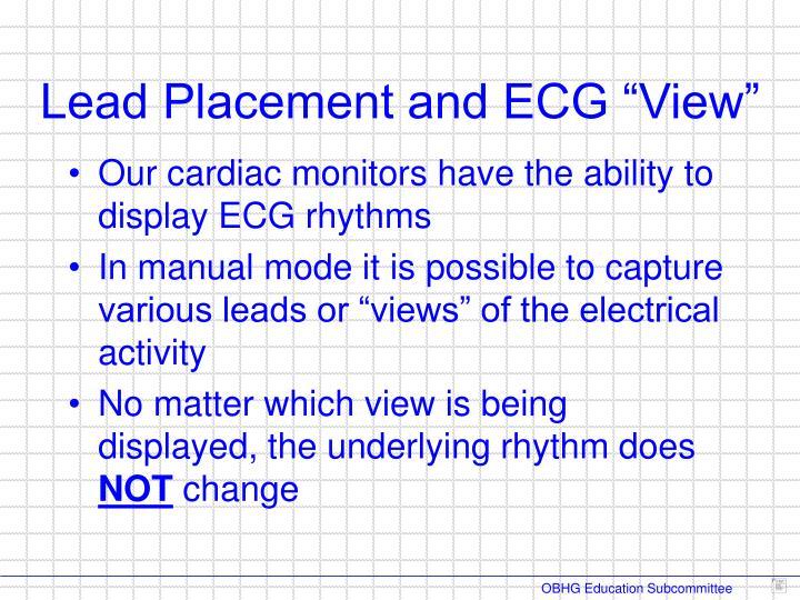 Our cardiac monitors have the ability to display ECG rhythms