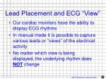 lead placement and ecg view