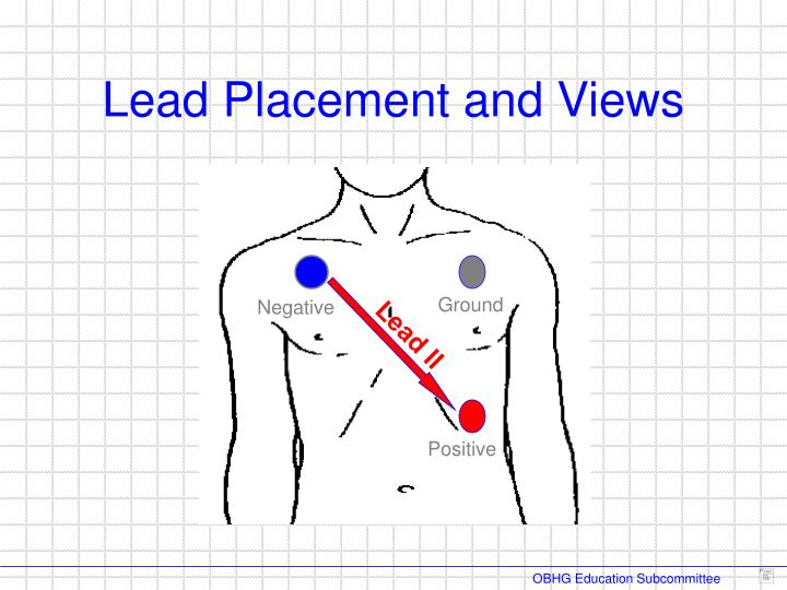 Lead Placement and Views