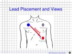 lead placement and views1