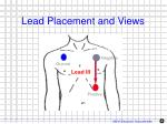 lead placement and views2