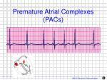 premature atrial complexes pacs1