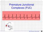 premature junctional complexes pjc1