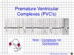 premature ventricular complexes pvc s1