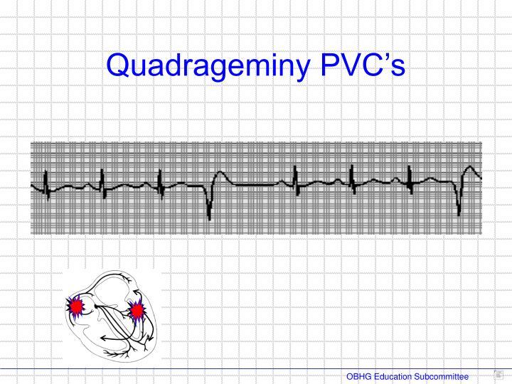 Quadrageminy PVC's
