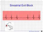 sinoatrial exit block1