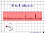 sinus bradycardia1
