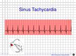 sinus tachycardia1