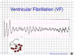 ventricular fibrillation vf1