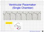 ventricular pacemaker single chamber