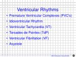 ventricular rhythms1