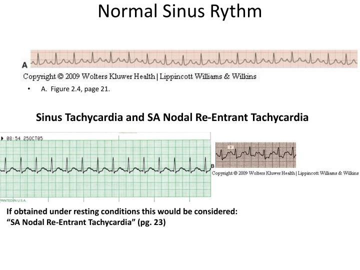 Normal Sinus