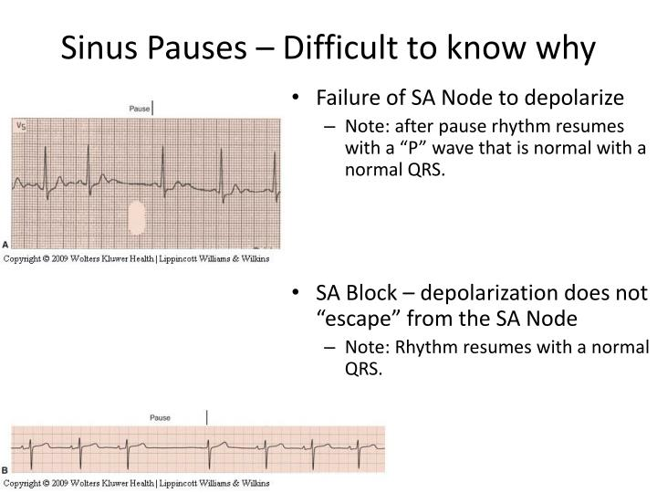 Sinus Pauses – Difficult to know why