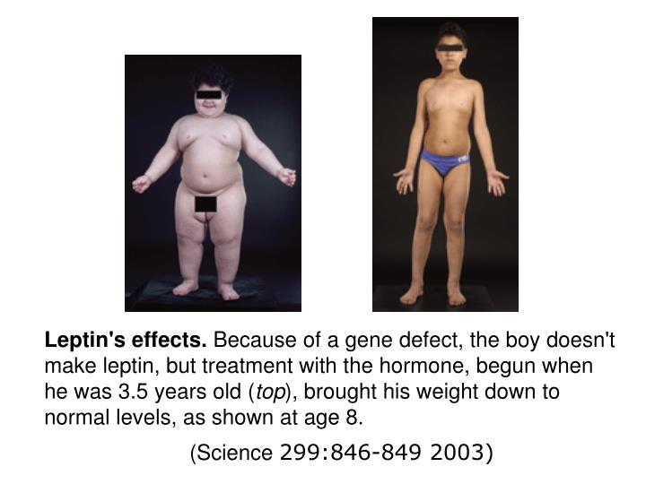 Leptin's effects.