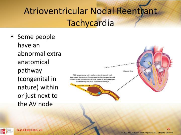 Atrioventricular Nodal Reentrant