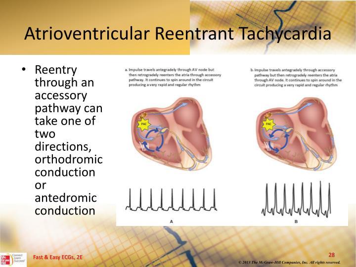 Atrioventricular Reentrant Tachycardia