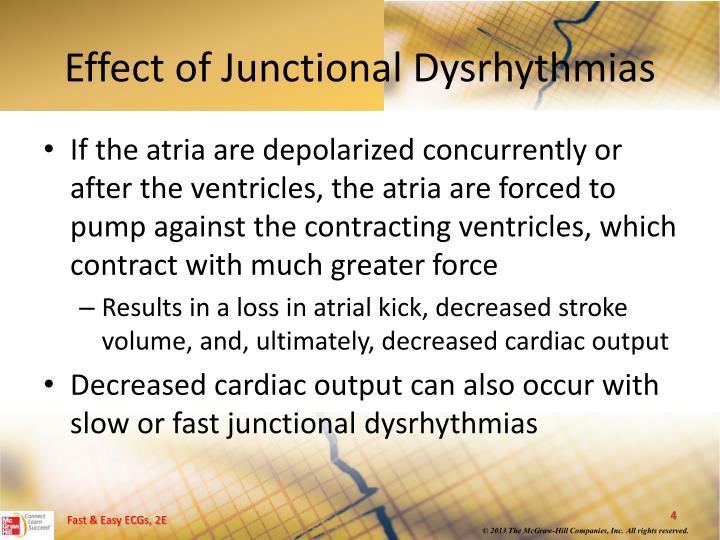 Effect of Junctional Dysrhythmias