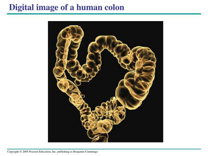 Digital image of a human colon
