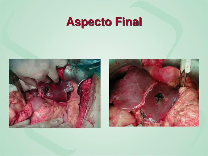 Aspecto Final
