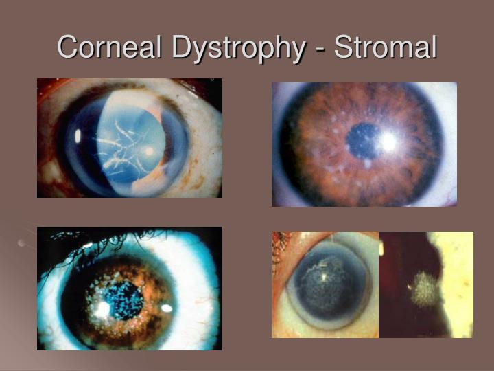 Corneal Dystrophy - Stromal