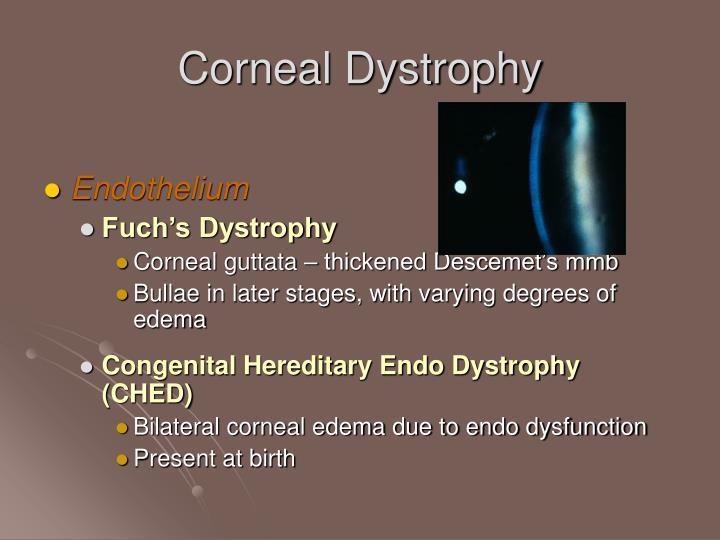 Corneal Dystrophy