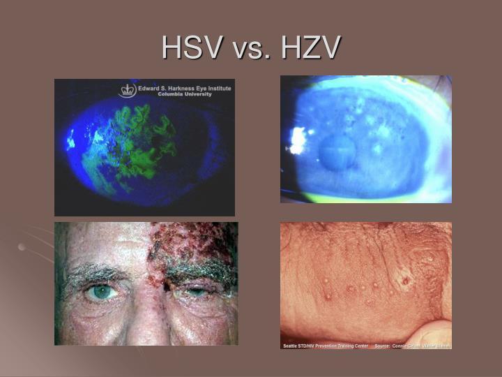 HSV vs. HZV