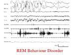 rem behaviour disorder1