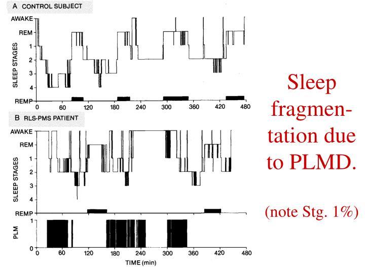 Sleep fragmen-tation due to PLMD.