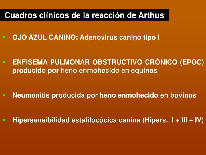 Cuadros clínicos de la reacción de Arthus