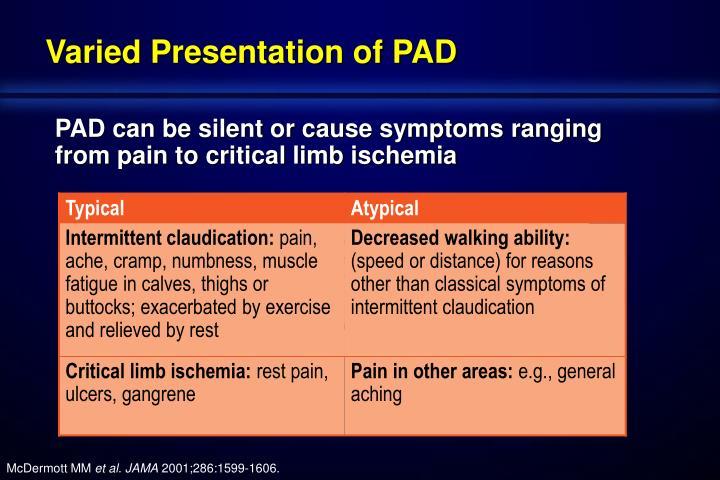 Varied Presentation of PAD
