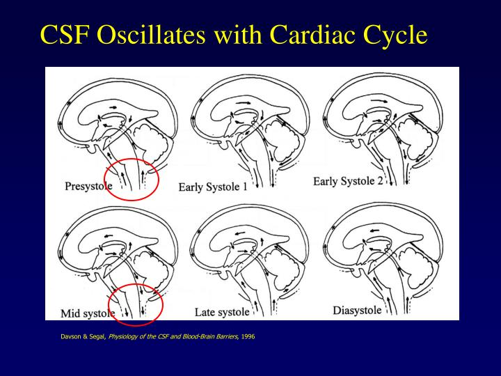 CSF Oscillates with Cardiac Cycle