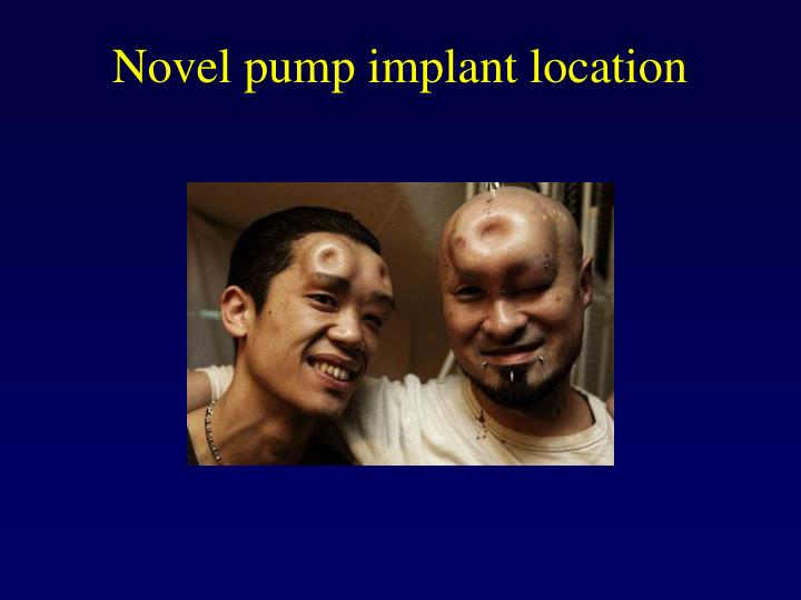 Novel pump implant location