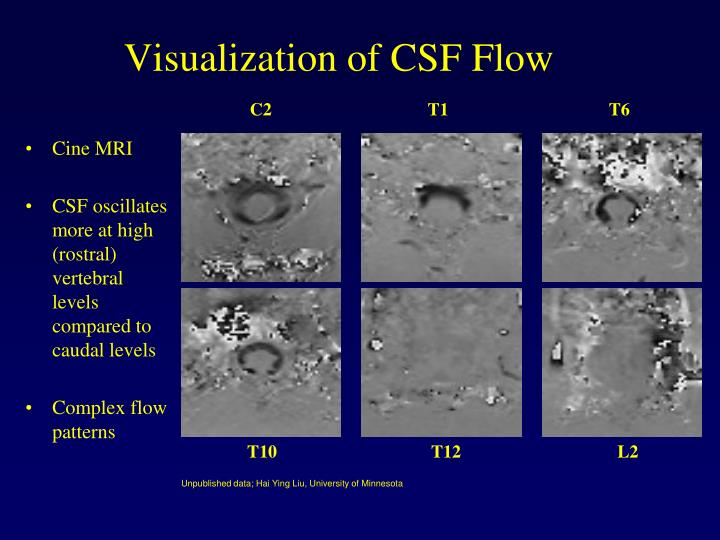 Visualization of CSF Flow