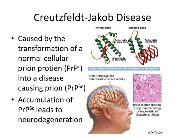 a look at the causes and treatment of creutzfeld jakob disease Creutzfeldt jakob disease causes and variant creutzfeldt jakob disease symptoms, diagnosis, and treatment options for creutzfeldt jakob disease.