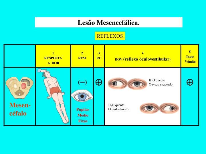 Lesão Mesencefálica.