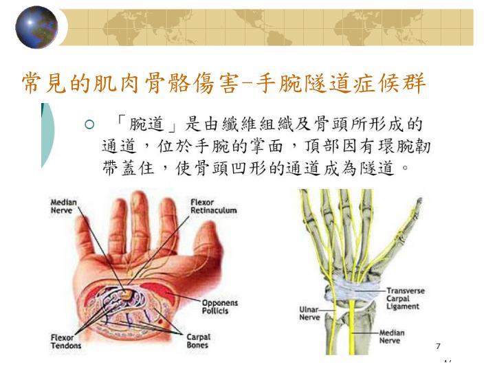 常見的肌肉骨骼傷害