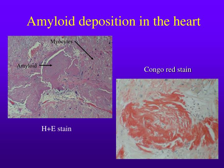 Amyloid deposition in the heart