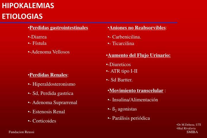 HIPOKALEMIAS