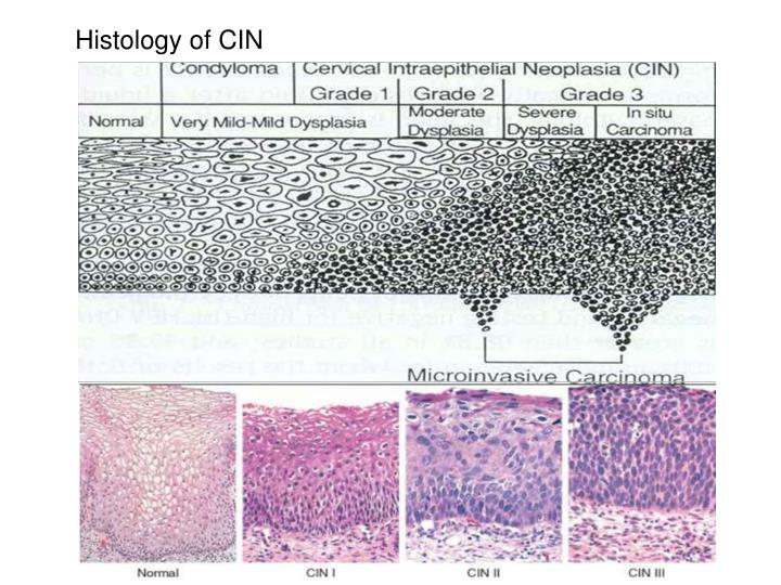 Histology of CIN