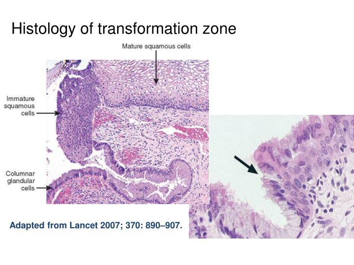 Histology of transformation zone