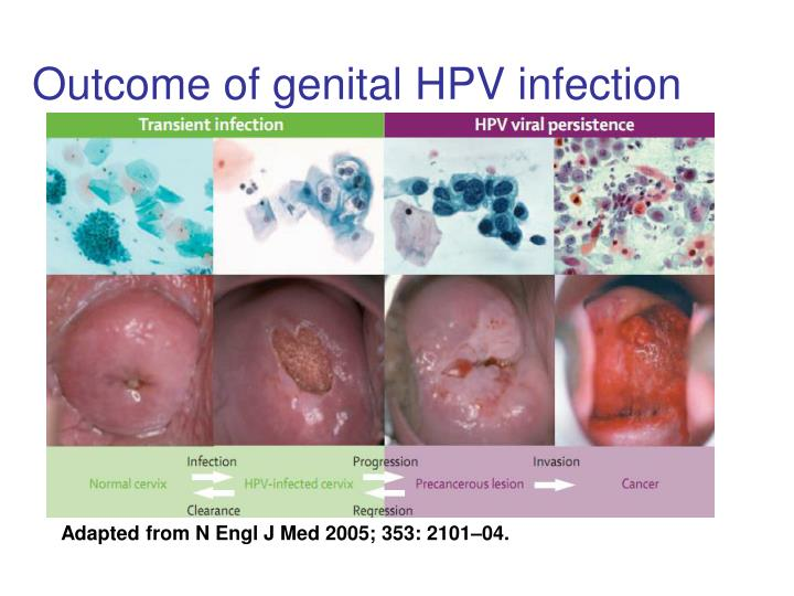 Outcome of genital HPV infection