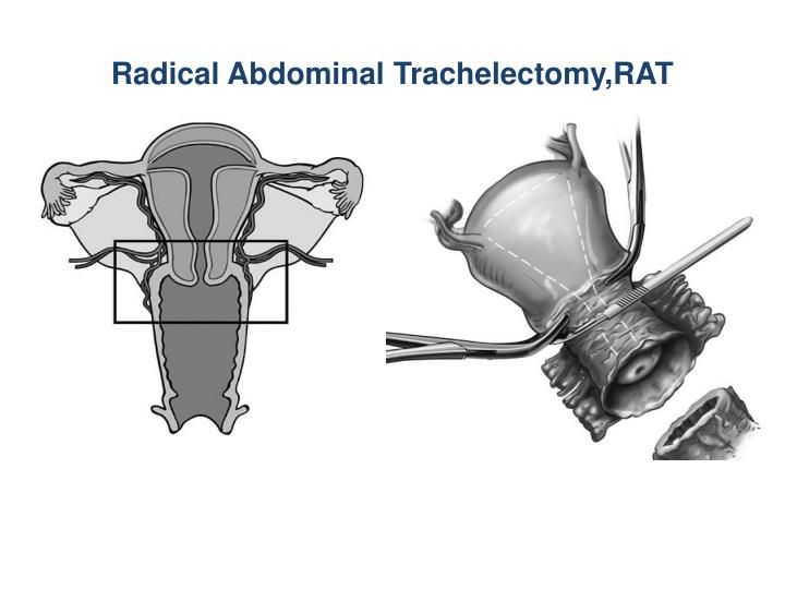 Radical Abdominal Trachelectomy,RAT