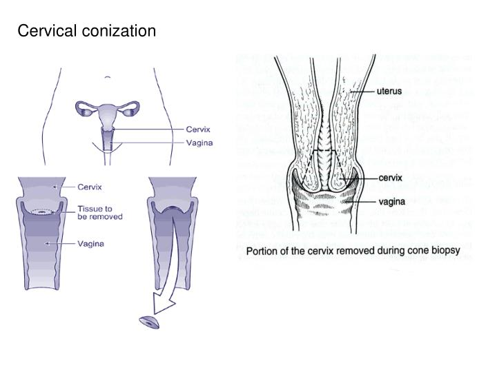 Cervical conization