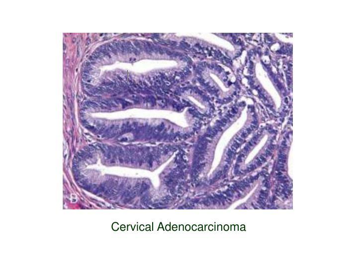 Cervical Adenocarcinoma